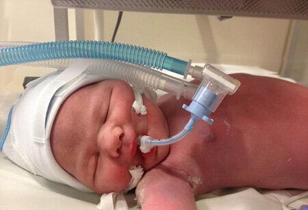 بیماری زجر تنفسی نوزادان