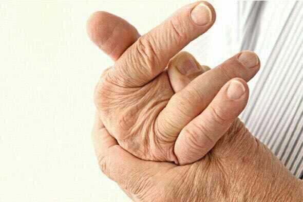 شکستن مکرر انگشتان دست باعث آسیب بافت نرم مفصل