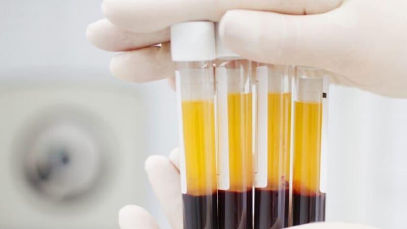 البرز پیشگام درمان کرونا از طریق پلاسمای خون